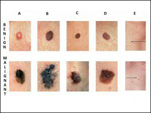 cancerul de piele ppt