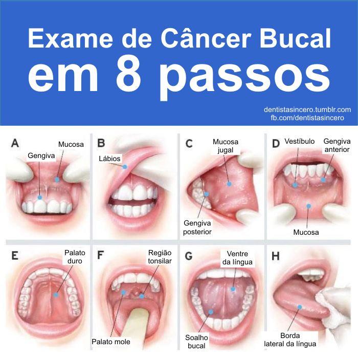Hpv cancer garganta sintomas