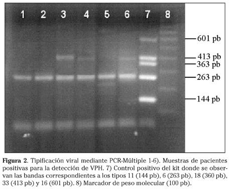virus del papiloma por pcr)