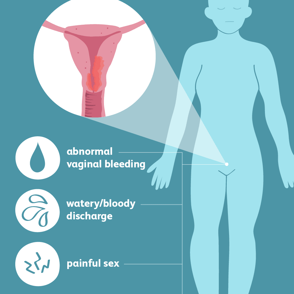 endometrial cancer causes
