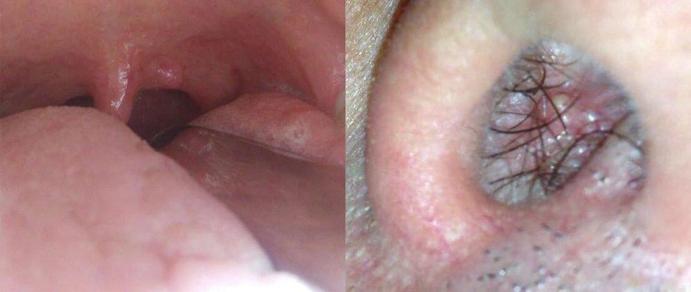 papilloma gola intervento helminth immune cells