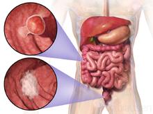aggressive cancer in colon)