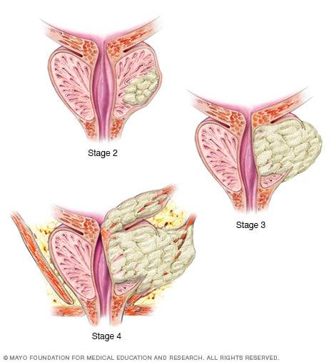 Semne boala prostata