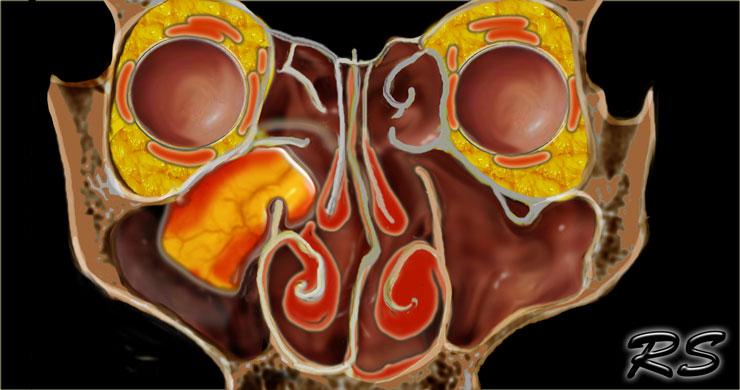 papilloma sinus cavity)