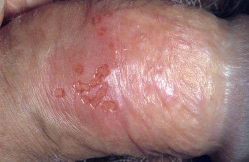hpv la femei simptome)