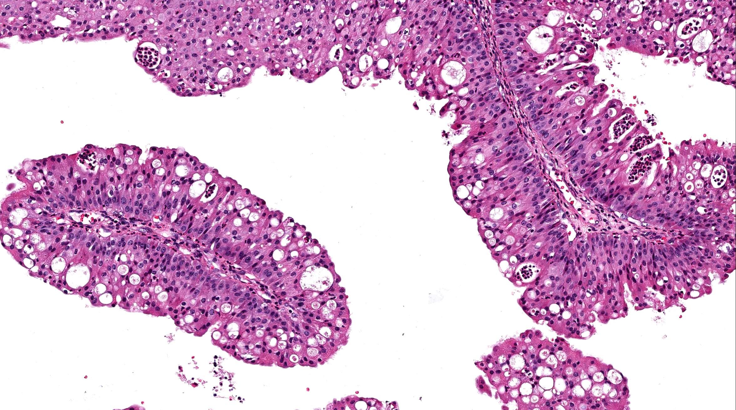 sinonasal papilloma exophytic type)