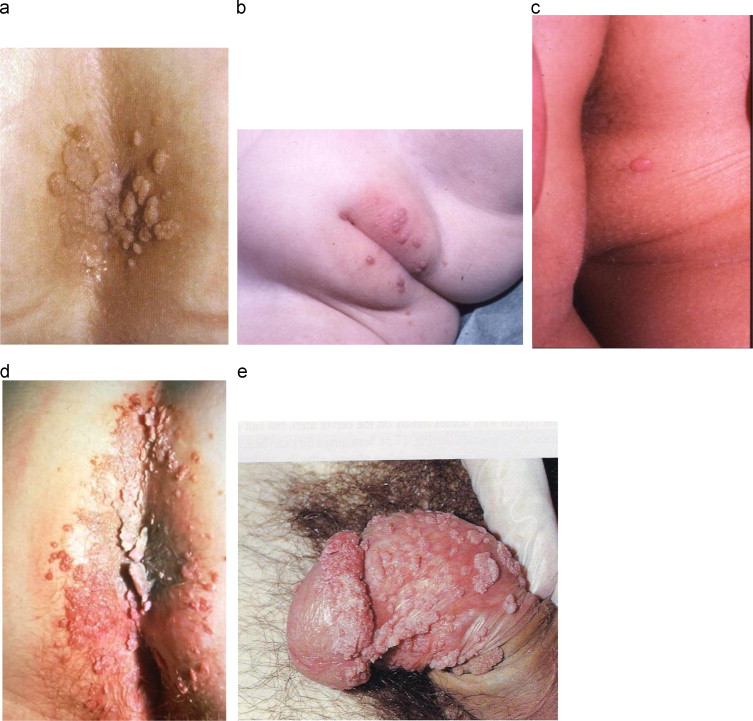 hpv and skin infection papiloma virus felino