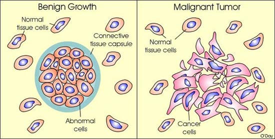 Breast cancer benign and malignant Giant phyllodes tumor of the breast