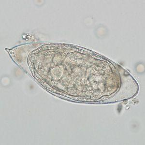Schistosomiasis flatworm.
