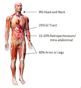 sarcoma cancer malignancy)