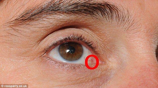 Cancerul intraocular - simptome și tratament