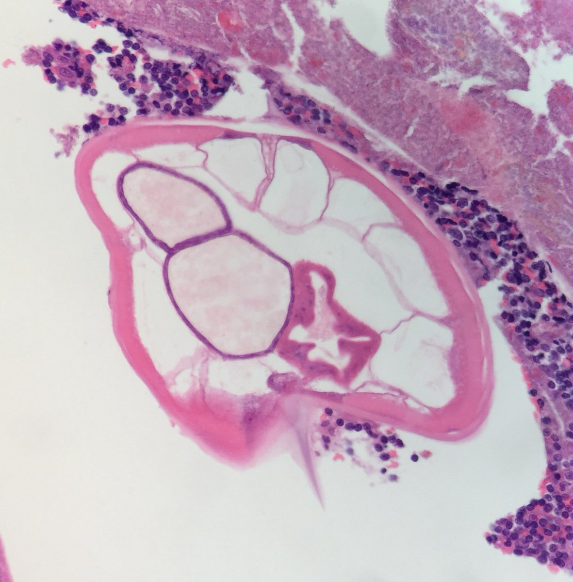 enterobius vermicularis appendix histology