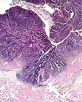 colorectal cancer histopathology