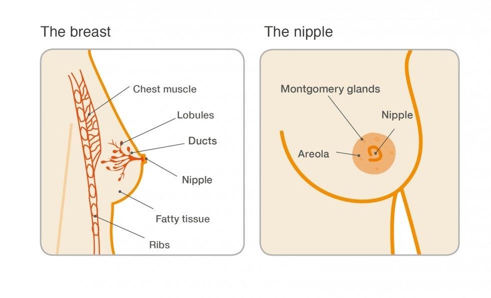 ectasia ductal papilloma