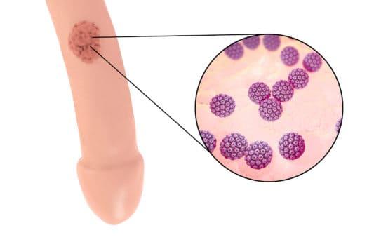 papillomavirus homme verge)
