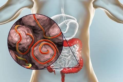 Enterobiasis bilder. Enterobius vermicularis (oxiurii)