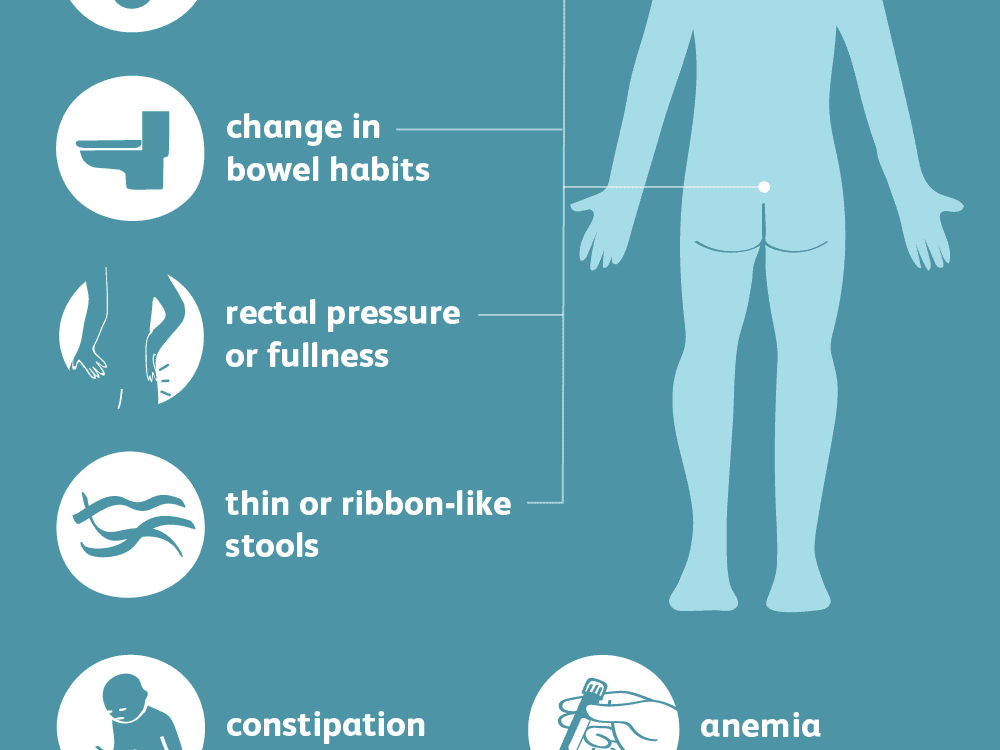 Rectal cancer signs and symptoms.