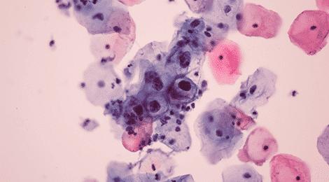 virus papillomavirus hpv)