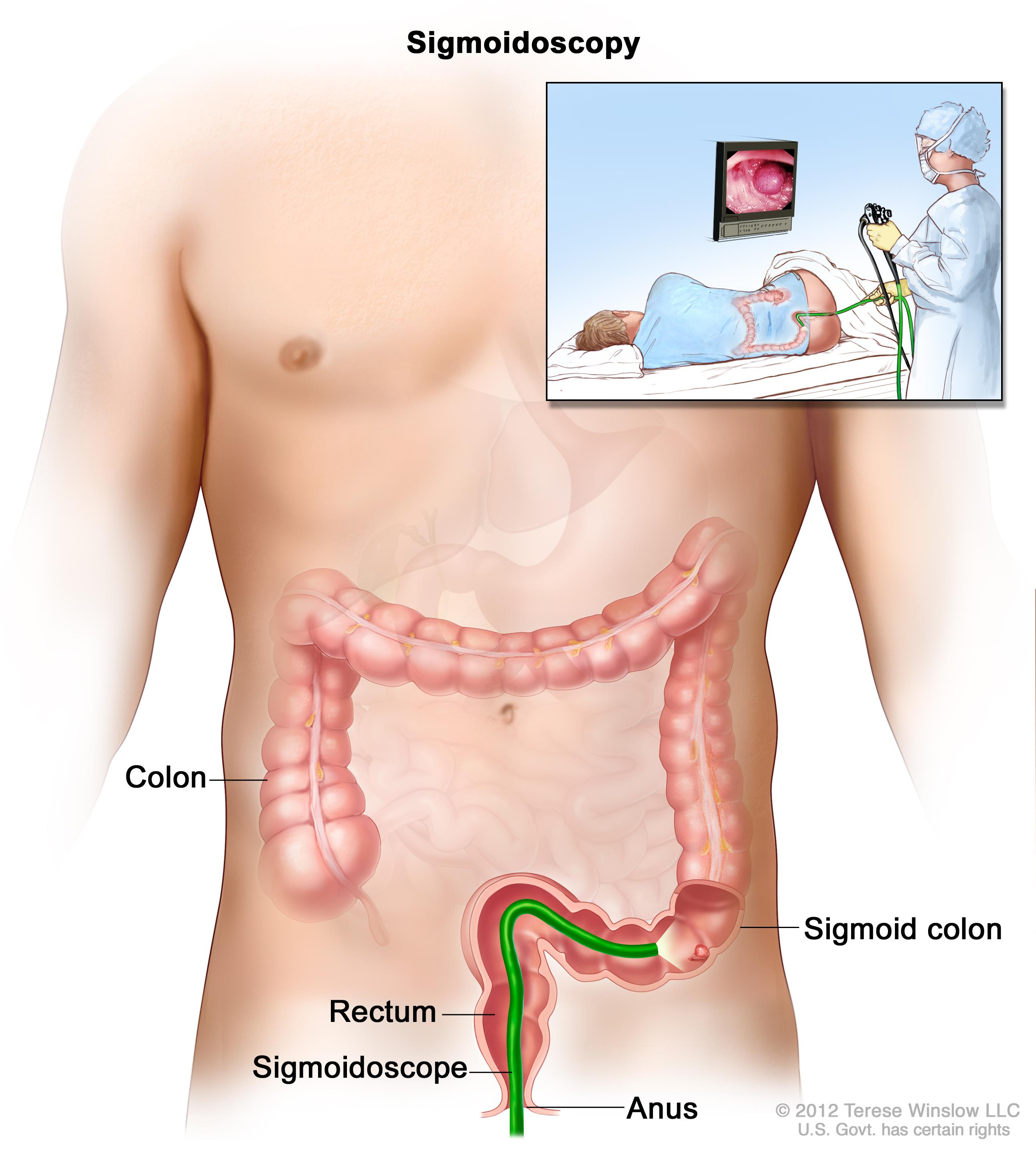 cancer colorectal definition
