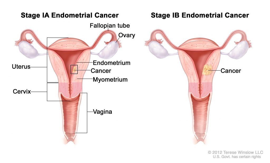 endometrial cancer at young age)