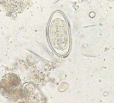 enterobius vermicularis oeuf