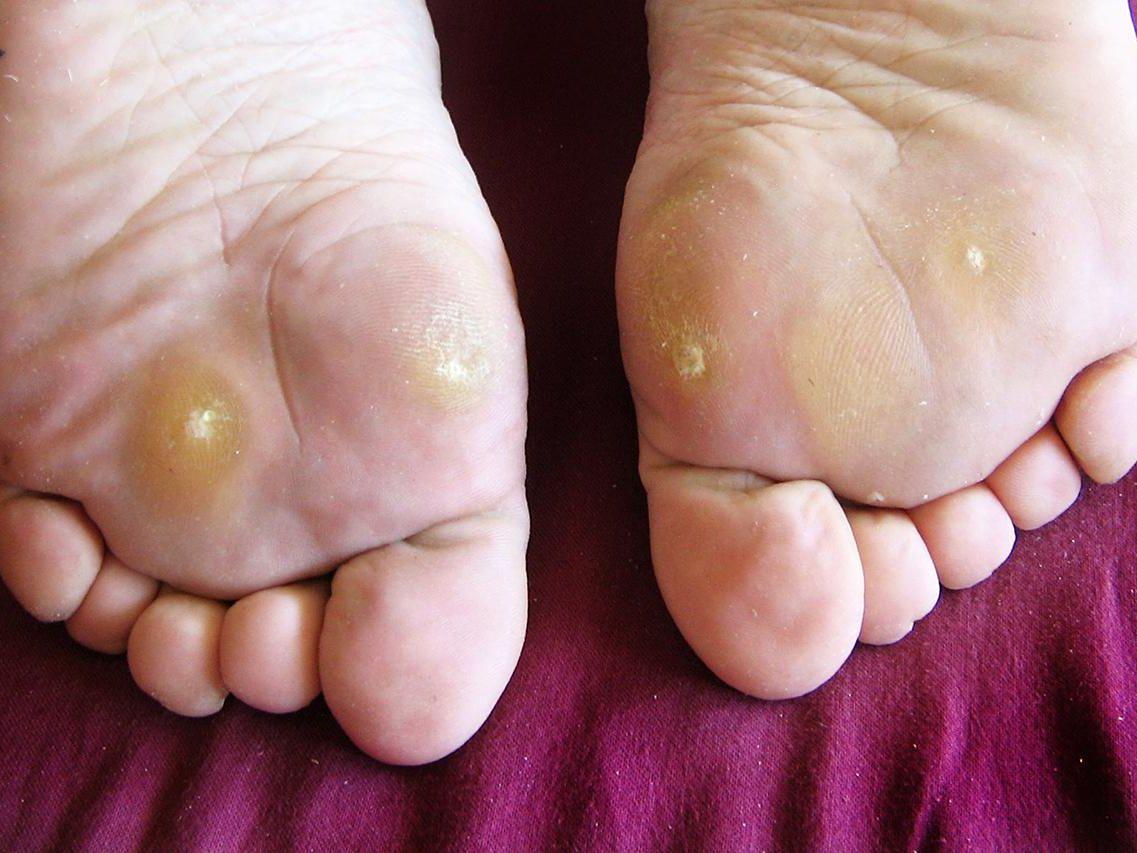 foot wart growing