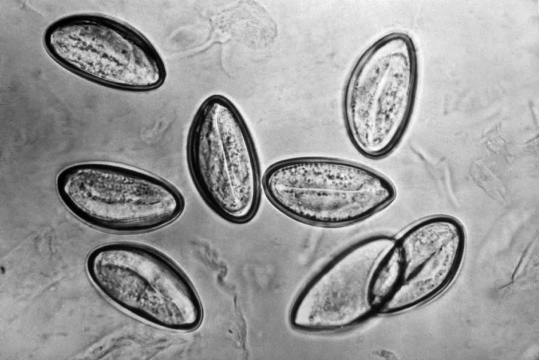 Enterobius vermicularis larva morfologia. Enterobius vermicularis