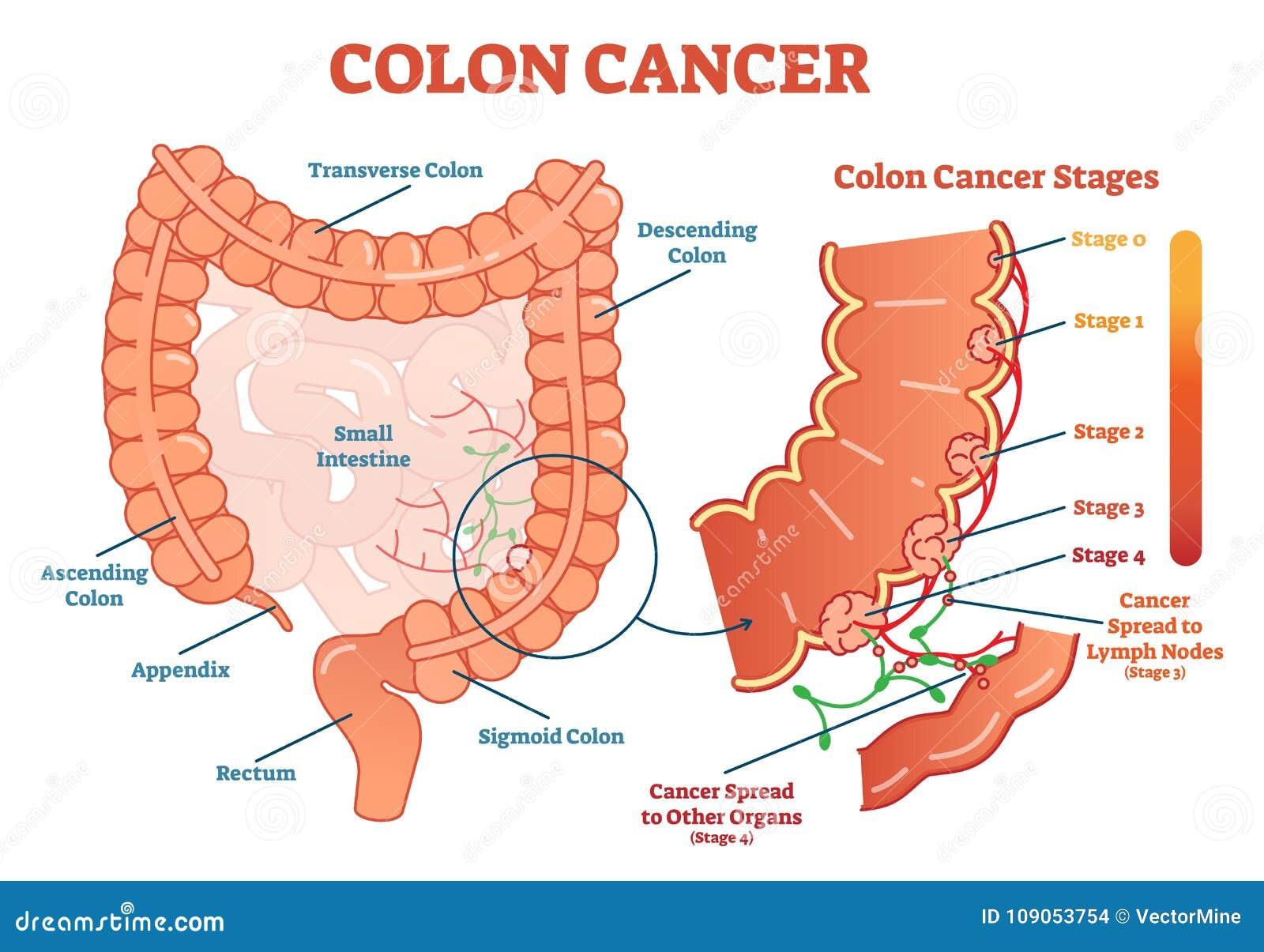 cancer de colon etapas