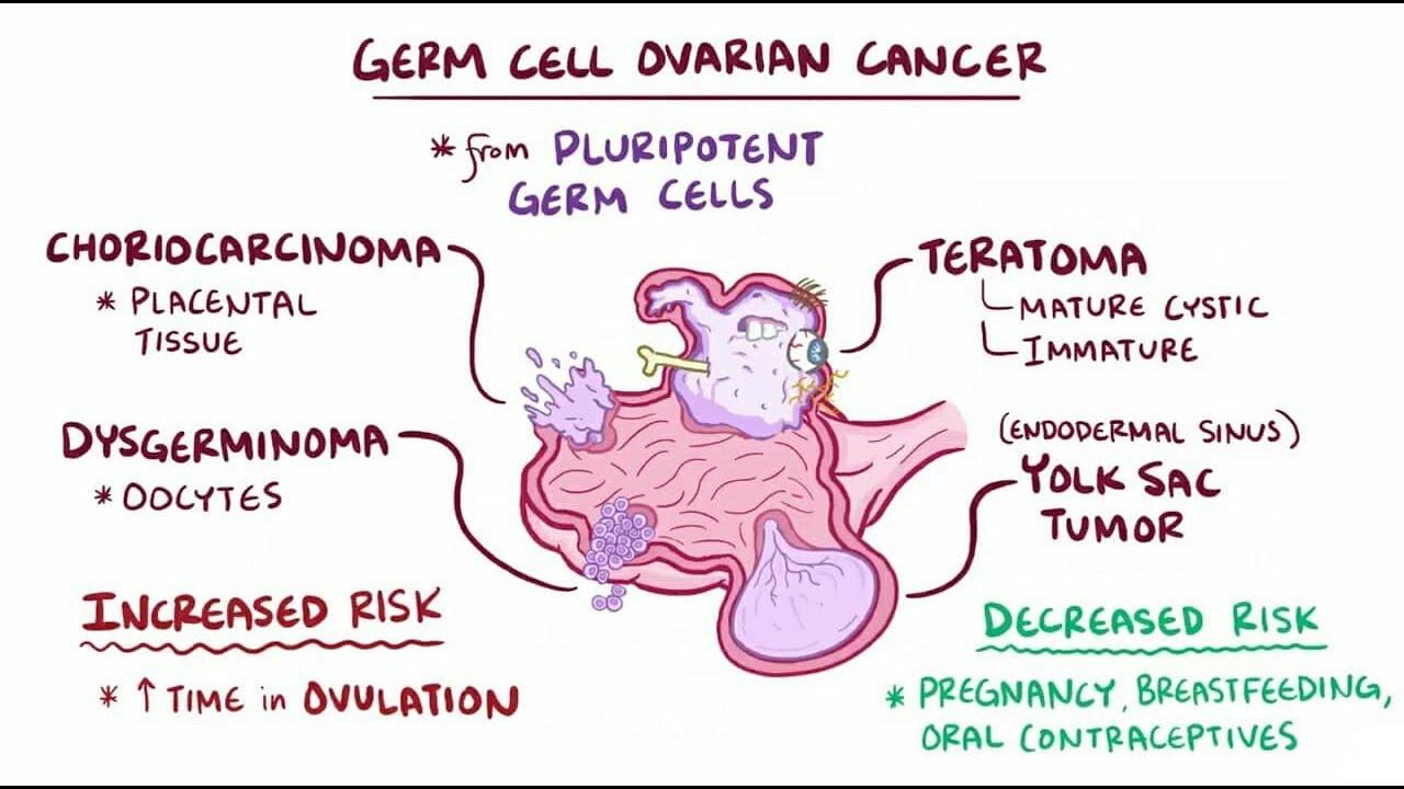 ovarian cancer germ cell