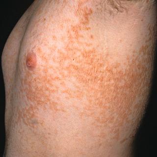 papillomatosis on skin)