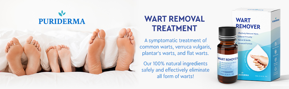 wart on foot treatment)