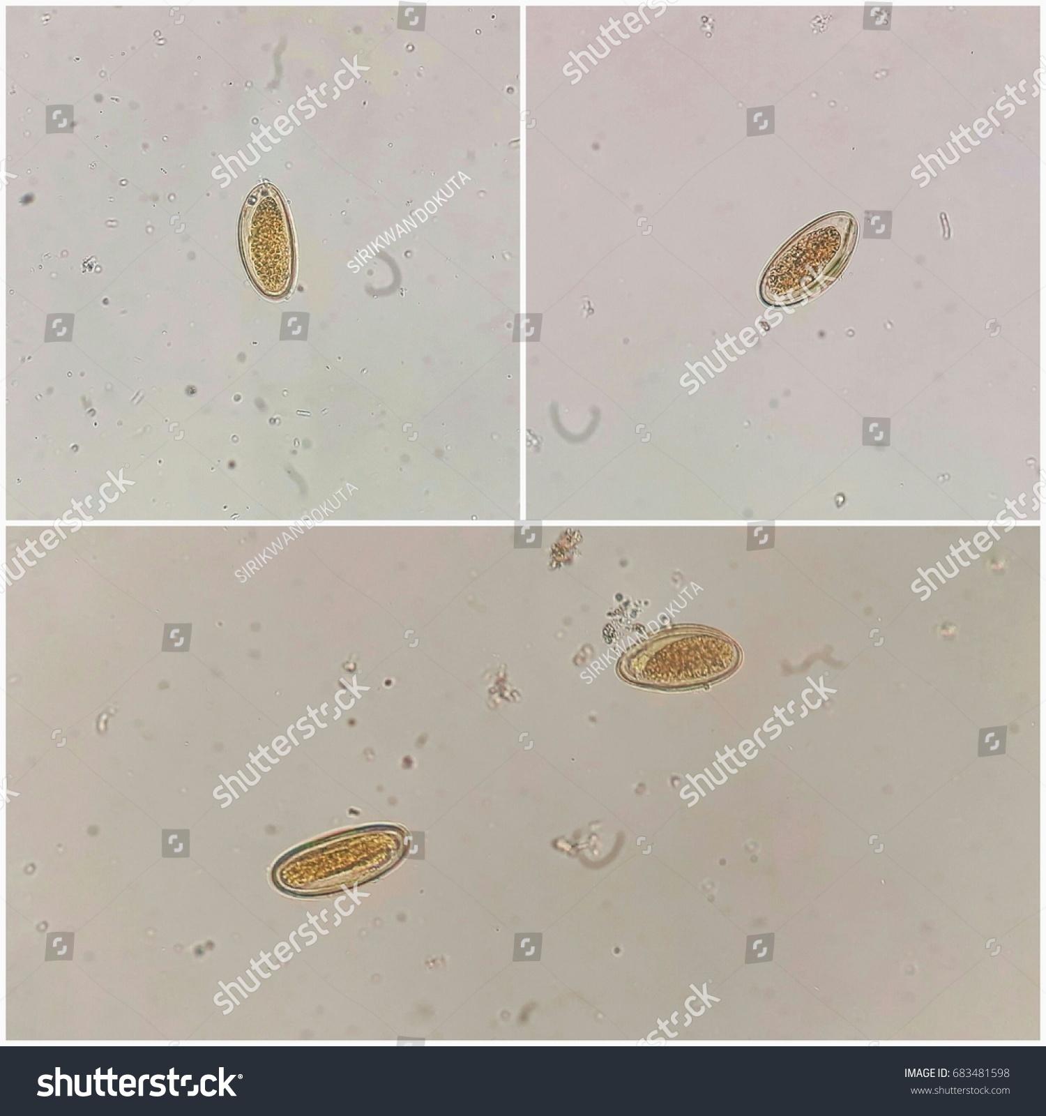 enterobius vermicularis ova in stool)