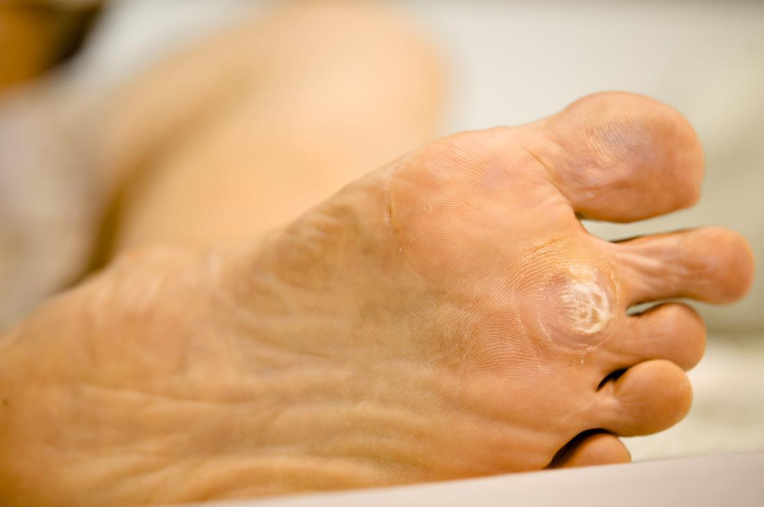 Fișier:Papilloma Virus (HPV) divastudio.ro - Wart on foot from hpv