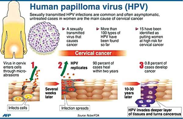 Human papillomavirus pathology - divastudio.ro