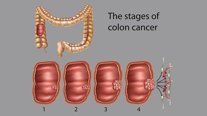 cancer colon t3