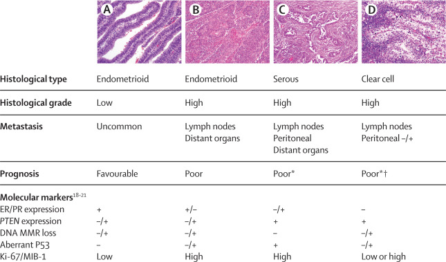 endometrial cancer histological types)
