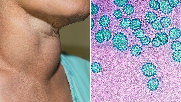 salivary human papillomavirus)