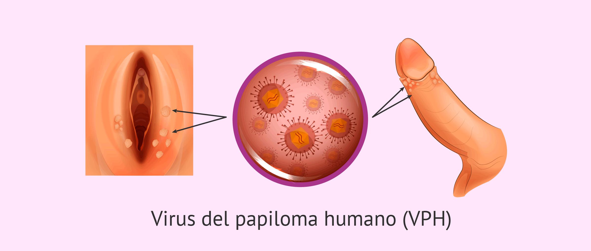 virus del papiloma como se contrae