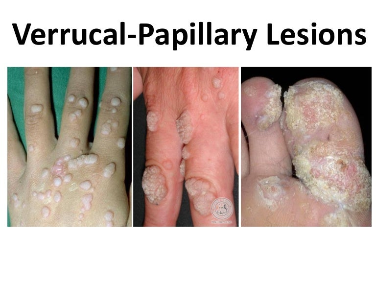 papilloma lesion)