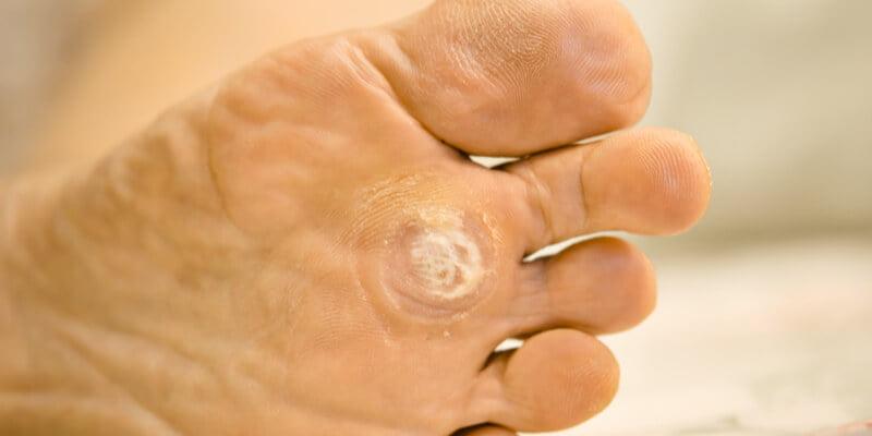 Nucșoară varicele tinctură, Virus del papiloma humano verrugas en el pie