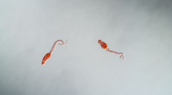 gambar penyakit schistosomiasis hpv douleur ovaire