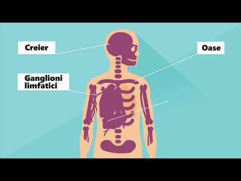 ganglioni limfatici helminti