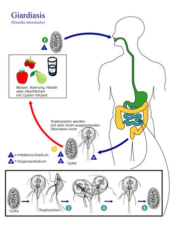 giardia mensch papilloma invertito istologia