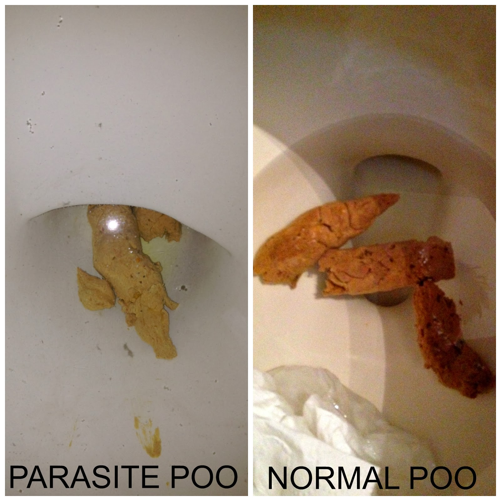 giardia poop toddler