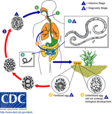 helminth infection cdc