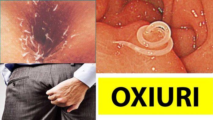helmintox sirop pret scapă de paraziții corpului dacă vrei