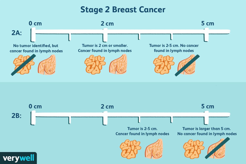 hormonal cancer diagnosis