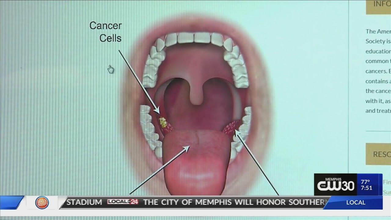 cancer maxilar simptome