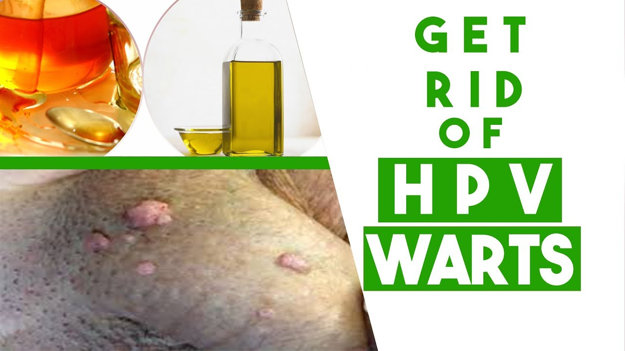 how to remove papilloma warts squamous papilloma of lip
