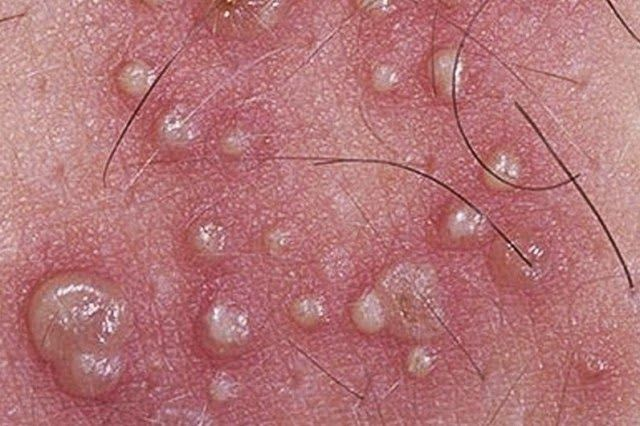 hpv sau herpes)